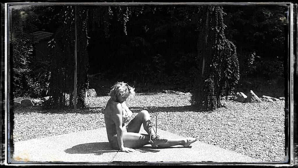 Woman sitting on concrete with steel rods in her leg due to a Pilon Fracture.